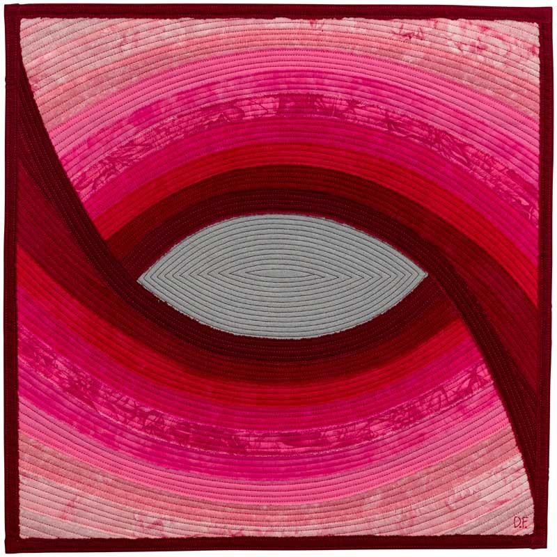 Cataract:Dianne Firth